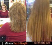 Saç Kaynak Gerçekleri